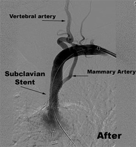 Subclavian Artery Stenting