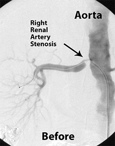 Renal Artery Stenting